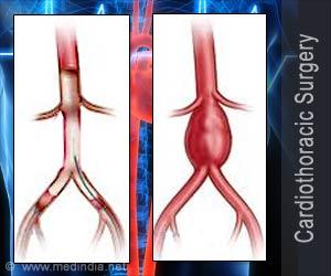 कार्डियो थोरॉसिक सर्जरी (हृदय रोग से संबंधित शल्य चिकित्सा)