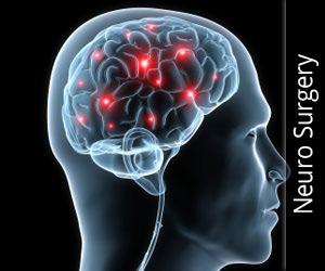 न्यूरो सर्जरी (मस्तिष्क से संबंधित शल्य चिकित्सा)