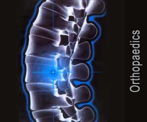 आर्थोपीडिक्स (हड्ड़ी से संबंधित)
